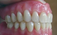 dentista-natal-protese1