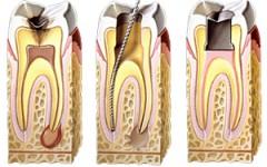 endodontia1-240x150