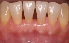 periodontia-240x150